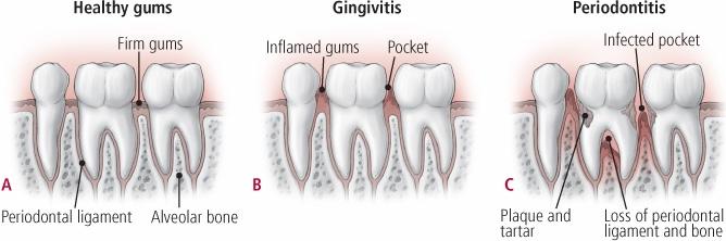 Gum Disease, Gingivitis, Periodontitus